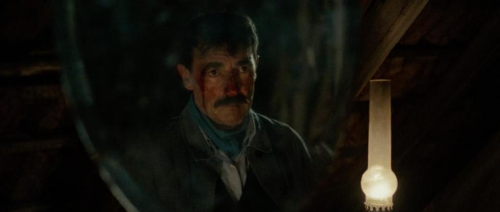 Visage d'Albert éclairé par une lampe. Il est en sang.